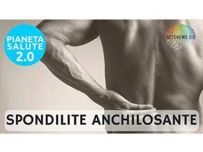 La Spondilite anchilosante. PIANETA SALUTE - 70 PUNTATA