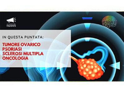 Tumore ovarico. Psoriasi. Sclerosi Multipla. Oncologia. LA VOCE DEL PAZIENTE agosto 2020