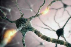 Nuova luce sull'atrofia muscolare spinale