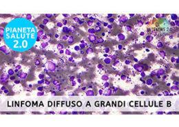 Linfoma diffuso a grandi cellule B. PIANETA SALUTE 2.0 puntata 224